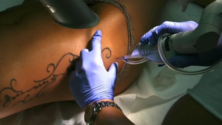 Laser-Tattooentfernung setzt Geduld voraus!